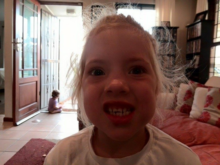 little girl with broken front teeth - jessica lotter