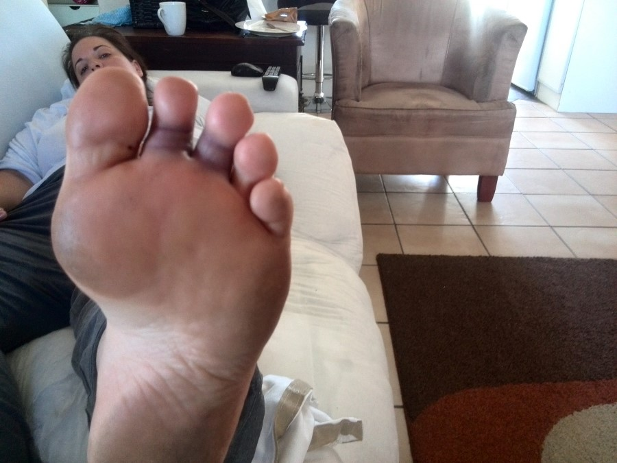 chantelle lotter and her dislocated toe