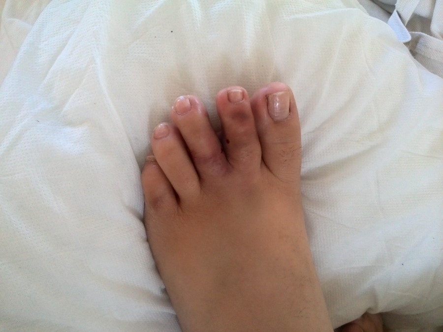 close up of chantelle lotter's dislocated toe
