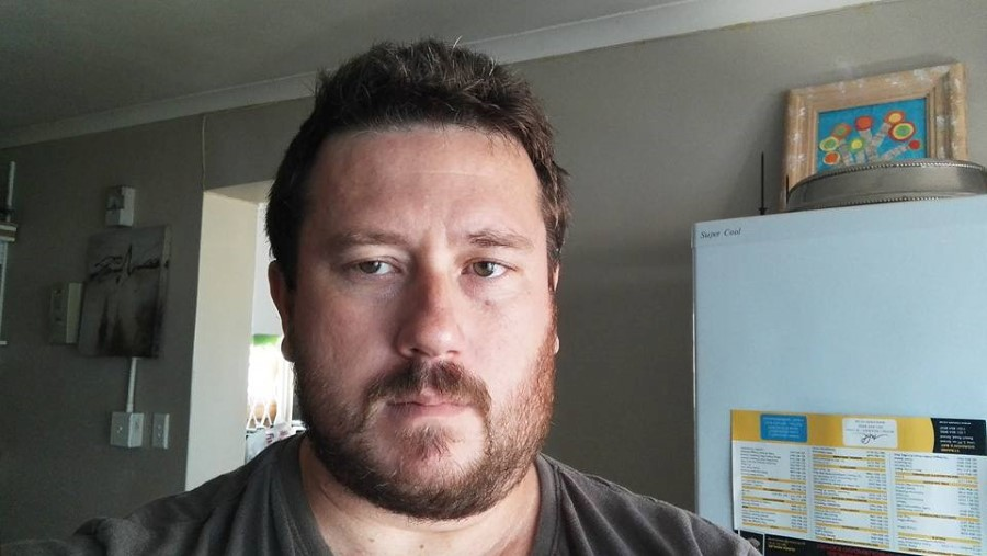 bearded man with a mumps face 2